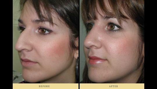 Ρινοπλαστική : Πριν και Μετά την πλαστική στη μύτη Περίπτωση 1