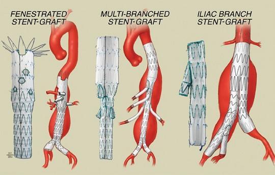 Ειδικά ενδαγγειακά μοσχεύματα με πλάγιους κλάδους και θυρίδες και η γεφύρωσή τους με τα σπλαχνικά αγγεία
