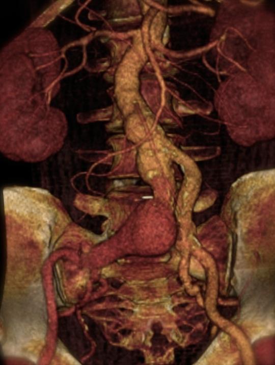 Αξονική αγγειογραφία του ασθενούς πριν και μετά την ενδαγγειακή    αντιμετώπιση όλων των ανευρυσμάτων. Εικόνα 2